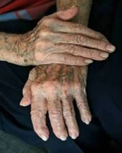 Grandpas Hands